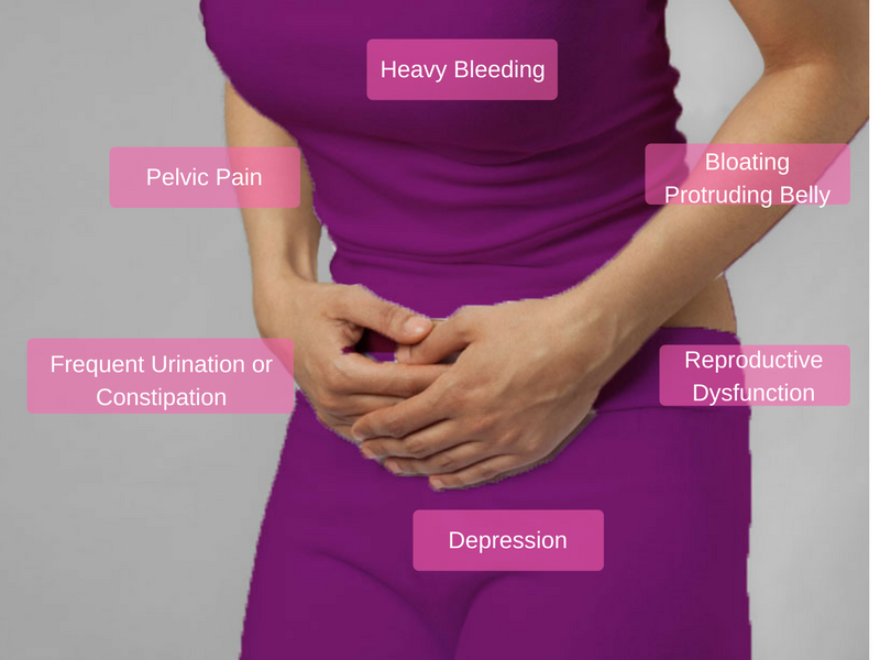 Find Out If You Are Suffering From Fibroids